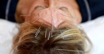 What are successful stories about acupuncture treatment ?